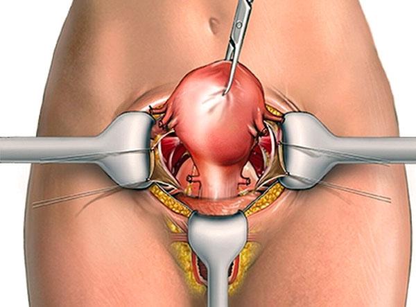 Лапаротомия при эндометриозе