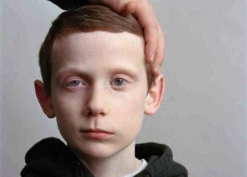 Лицевой нерв, воспаление: симптомы у взрослых и детей, диагностика, лечение