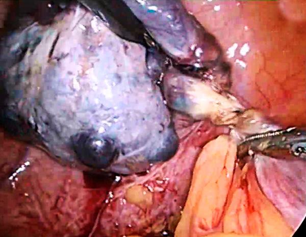 Перекрут ножки образования яичника