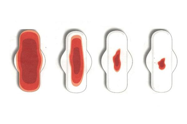 Уменьшение объема месячных при аденомиозе