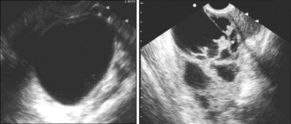 Сравнение УЗИ-снимков кистозного образования и рака яичника
