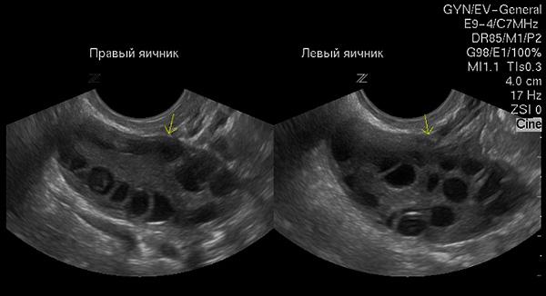 Антральные фолликулы в яичниках (снимок УЗИ)