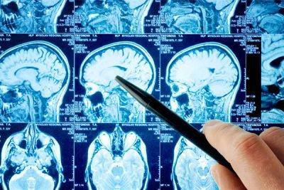деменции с тельцами Леви: диагностические методы