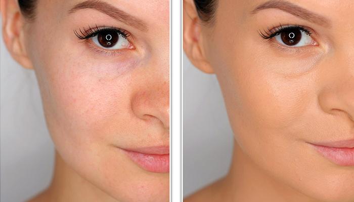 до и после применения матирующего крема