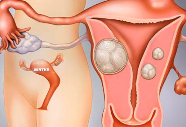 Прополис не способен уменьшить миоматозные узлы