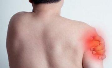 Невралгия плечевого нерва: код по МКБ-10, симптомы, причины, диагностика, лечение