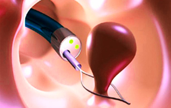 Удаление полипа эндометрия