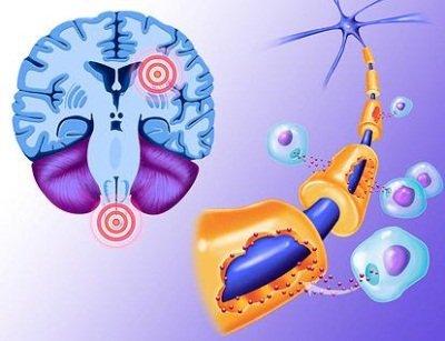 Обострение рассеянного склероза: патофизиологический механизм процесса