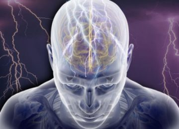 Эпилептический статус.