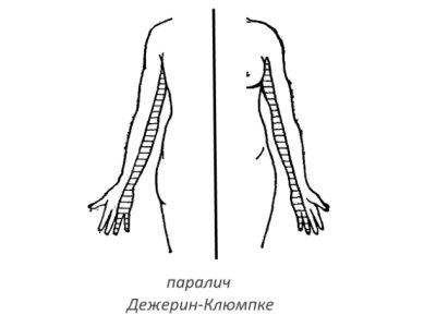 Неврит плечевого нерва: паралич Дежерин-Клюмпке и его симптомы