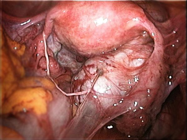 Спаечный процесс органов малого таза (лапароскопия)