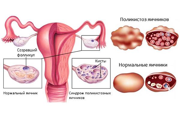 Сравнение яичника с СПКЯ и в норме