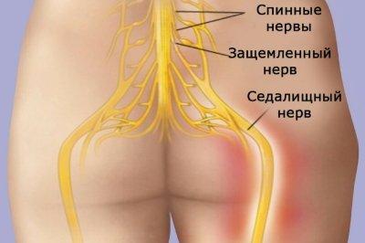 Воспаление седалищного нерва: симптомы и лечение, причины