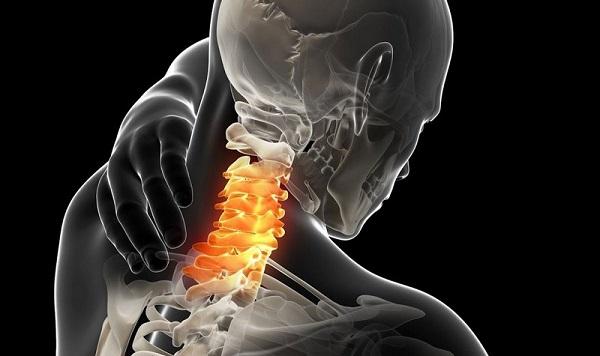 Грыжи дисков шейного отдела позвоночника болезнь нашего времени