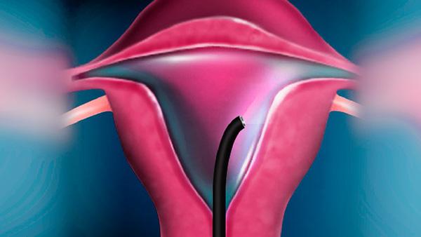 Исследование матки методом гистероскопии