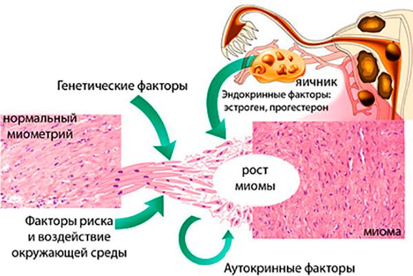 Причины возникновения миомы