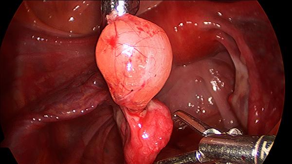 Операция по устранению перекрута кисты яичника
