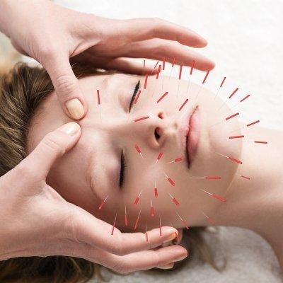 Иглоукалывание при неврите лицевого нерва: правила проведения процедуры