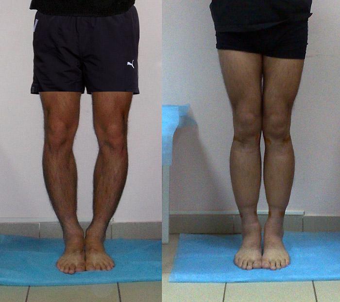 кривые ноги у мужчин
