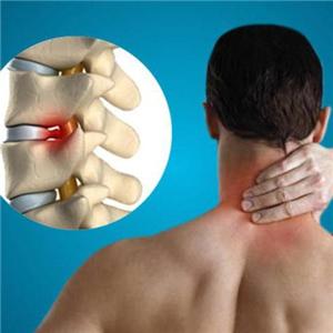 Грыжа диска шейного отдела позвоночника – какое лечение решит проблему?