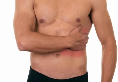 Межреберная невралгия: симптомы приступа