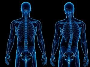 Симптомы сколиоза, как не допустить искривление позвоночника