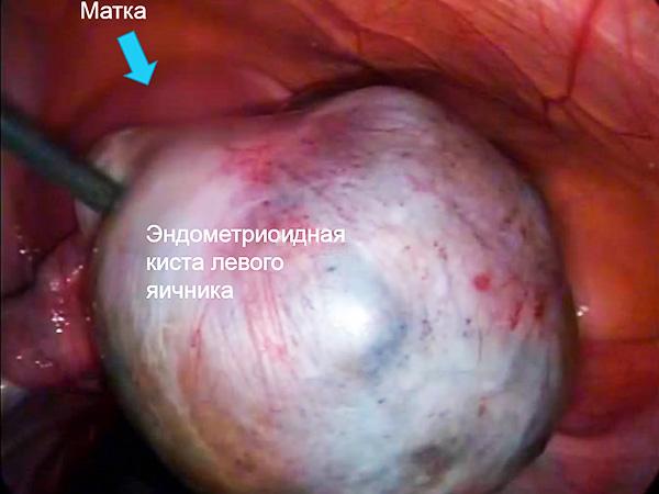 Обнаружение кистозного образования эндометриоидного типа во время лапароскопии