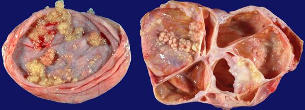 Папиллярная цистаденома в разрезе