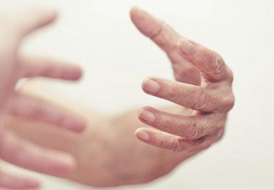 Паркинсонизм - симптомы: тремор