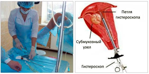Гистероскопическое удаление миомы