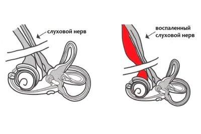 Неврит слухового нерва: код по МКБ-10