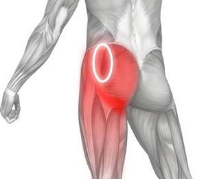 Почему возникает воспаление седалищного нерва и как с ним бороться?