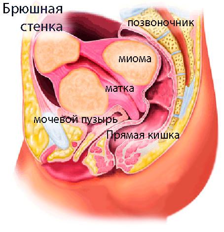 Давление миомы на соседние органы