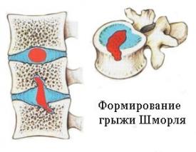 Если у Вас подозрение на грыжу Шморля в грудном отделе позвоночника читайте статью