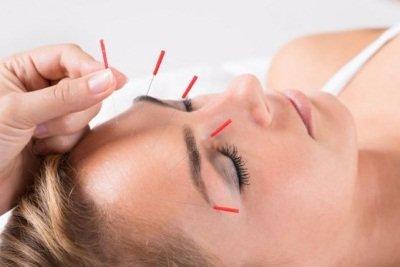 Менструальная мигрень: немедикаментозные методы лечения