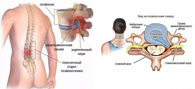 Отзыв крем для суставов малавит