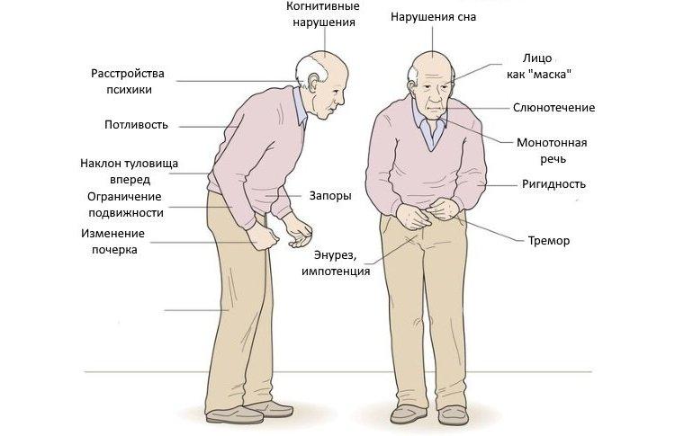 Симптомы болезни Паркинсона: как начинается: первые ранние признаки у мужчин и женщин