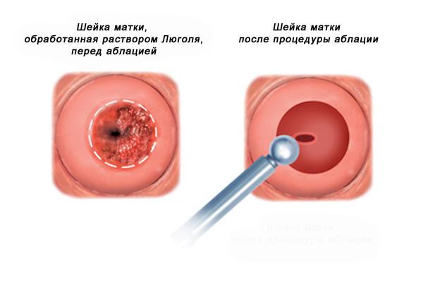 Лазерная аблация (вапоризация) шейки матки
