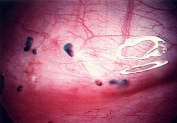 Фото аденомиоза во время гистероскопического исследования