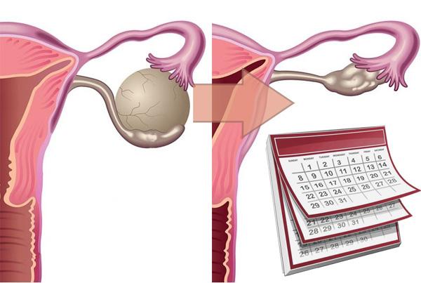 Выясняем, какова вероятность того, что киста яичника рассосется сама собой или выйдет из организма во время месячных...