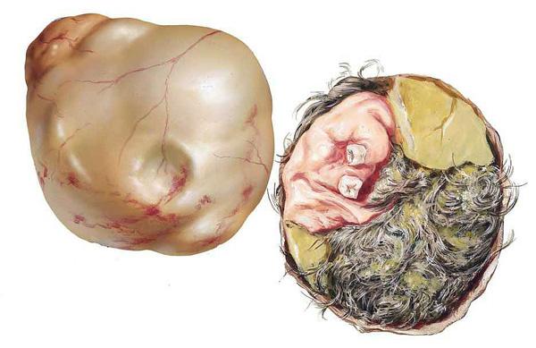 Состав дермоидной кисты