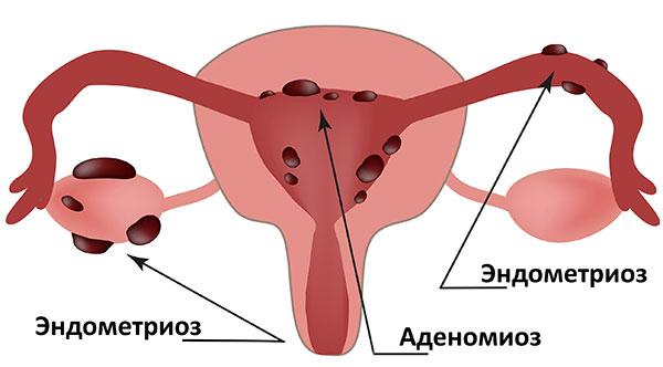 Виды генитального эндометриоза