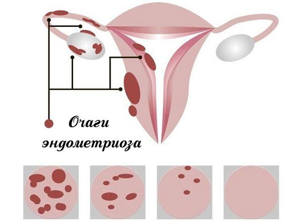 Уменьшение очагов эндометриоза на фоне лечения