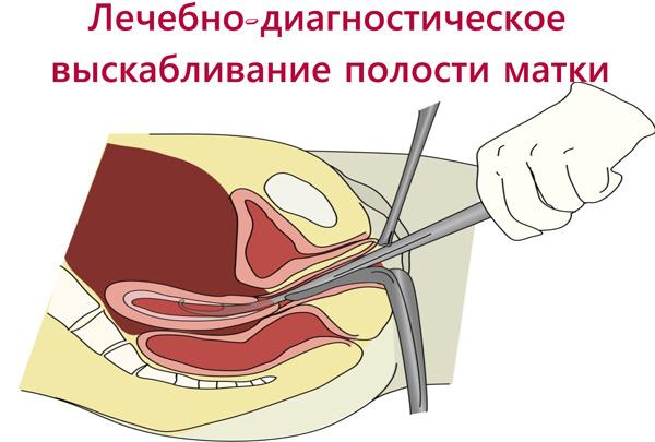 Диагностическое выскабливание полости матки при кровотечении