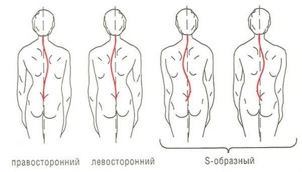 Причины возникновения сколиоза поясничного отдела позвоночника