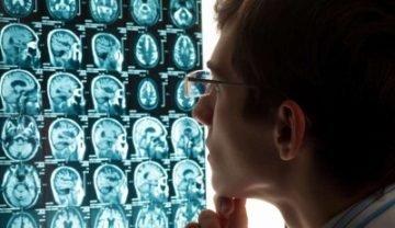 Рассеянный склероз на МРТ: почему используется метод, как проводится обследование, как выглядит заключение?