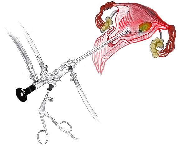 Операция удаления миоматозных узлов с помощью гистероскопа