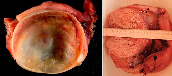 Киста яичника и миома матки в разрезе