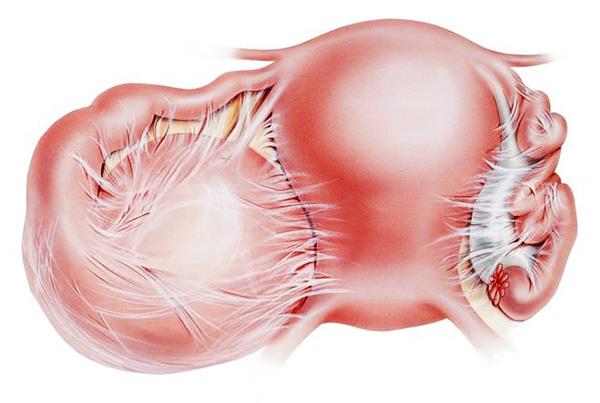 Так выглядит спаечный процесс органов малого таза