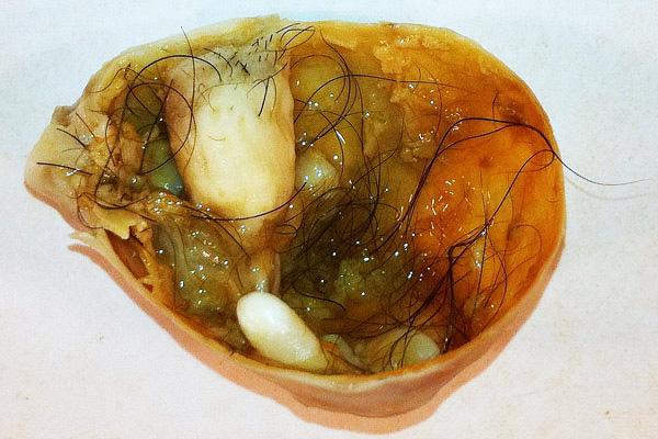 Дермоидная киста часто содержит в себе различные ткани, в том числе хрящи, волосы, кости